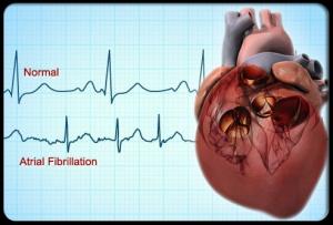 fibrillation