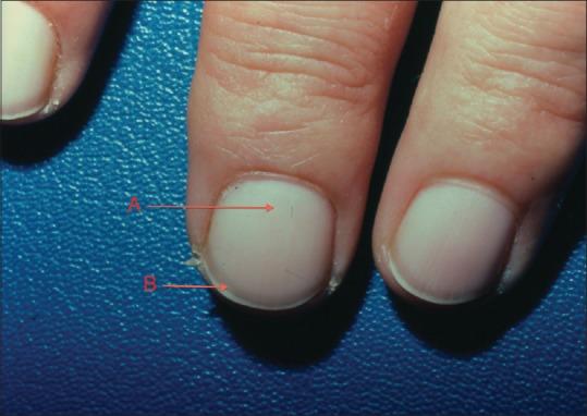 terry nail