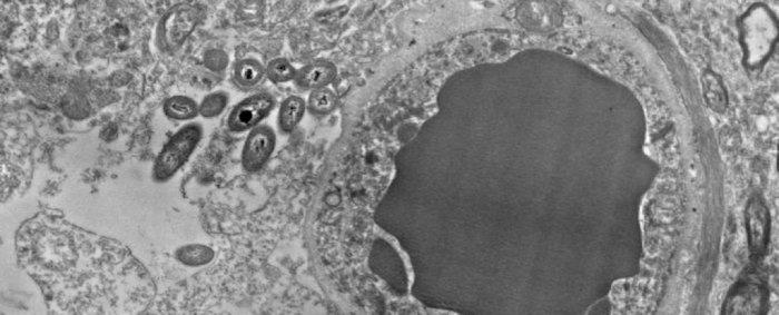 BRAIN MICROBIOME